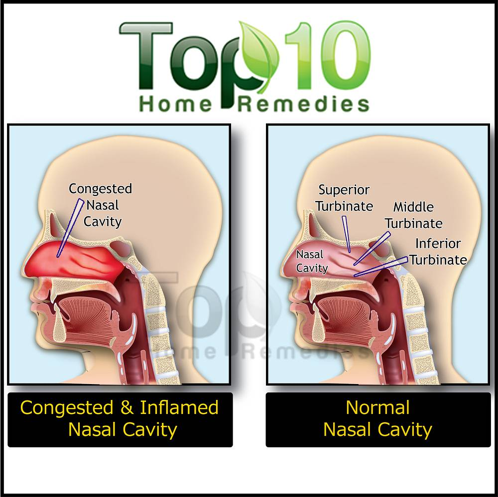 Home Remedies for Nasal Congestion | Top 10 Home Remedies