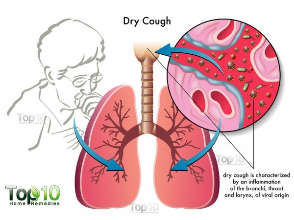 dry cough diagram
