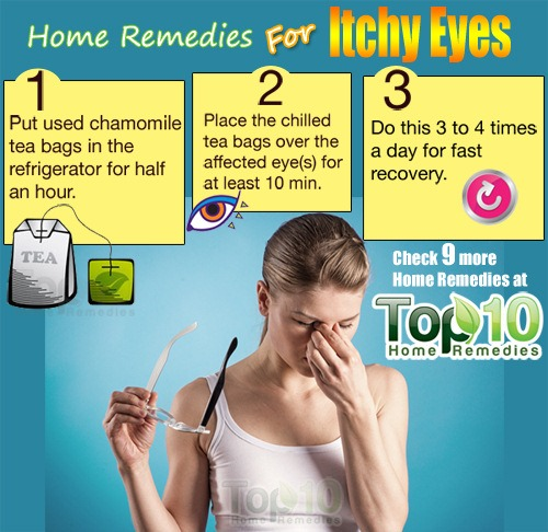 itchy eyes home remedies