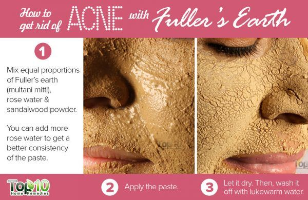 fuller's earth to get rid of acne