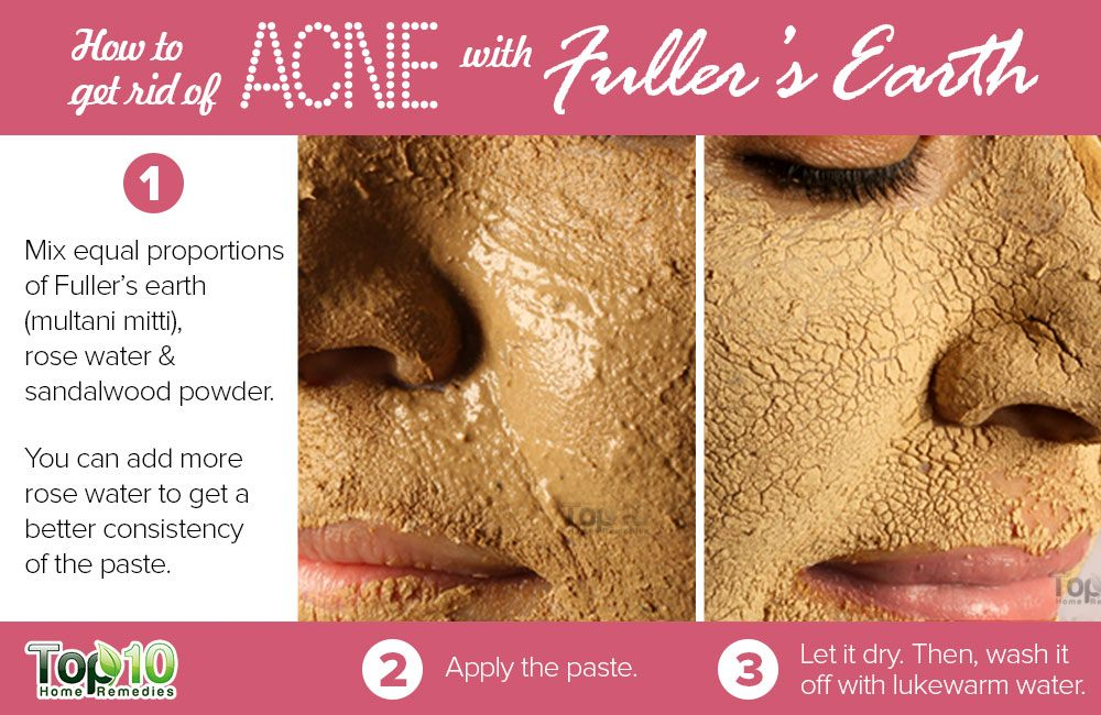 What gets rid of pimples fast overnight