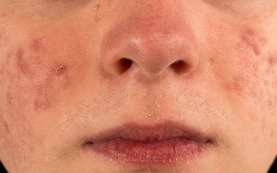home remedies for acne cysts