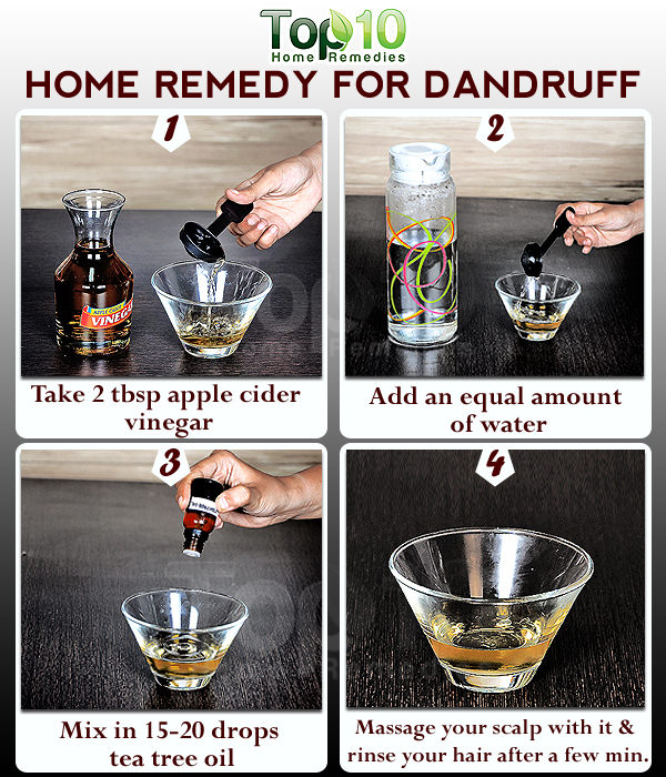 Natural Remedy For Dandruff And Hair Fall