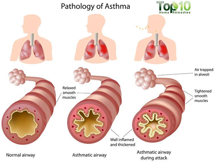 Symptoms asthma adult cough
