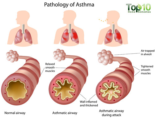 asthma anatomy
