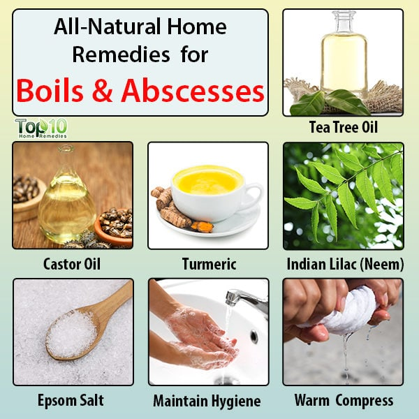 Boils and abscesses natural home remedies
