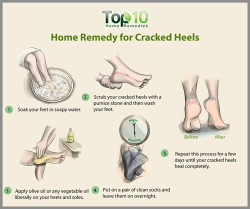 cracked heel home remedy using oil
