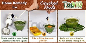 cracked heels home remedy