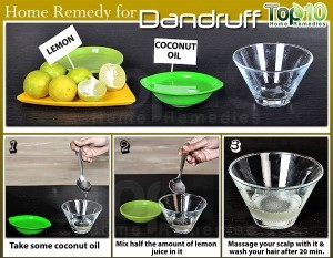 Natural Cure for dandruff