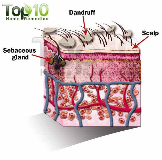 dandruff illustration