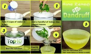 dandruff home remedy