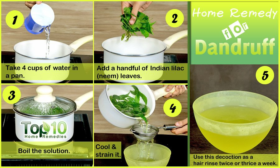 Natural Anti Dandruff Home Remedies