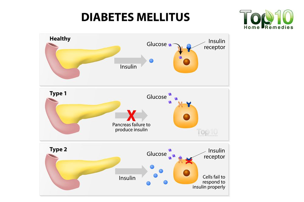 Diabetes Type  Natural Remedies Glucose Insulin