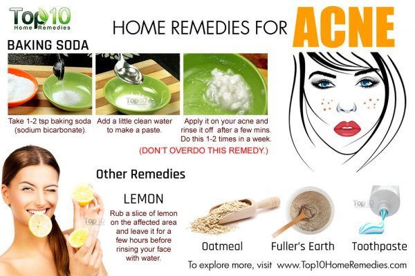 Home Remedies For Pimples For Oily Skin