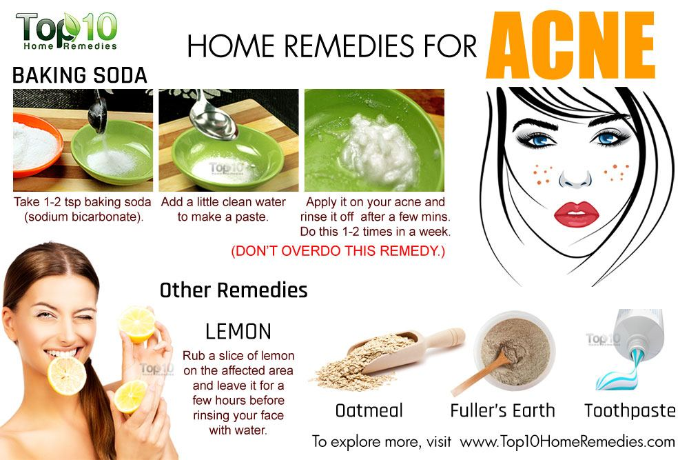 home remedies for pimples on face