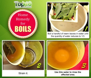 home remedy for boils