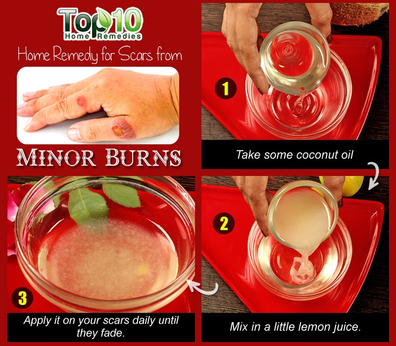 Home remedies for minor burns top 10 home remedies 4 coconut oil and lemon juice ccuart Image collections