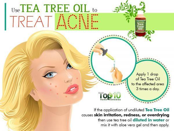 tea tree oil to treat acne