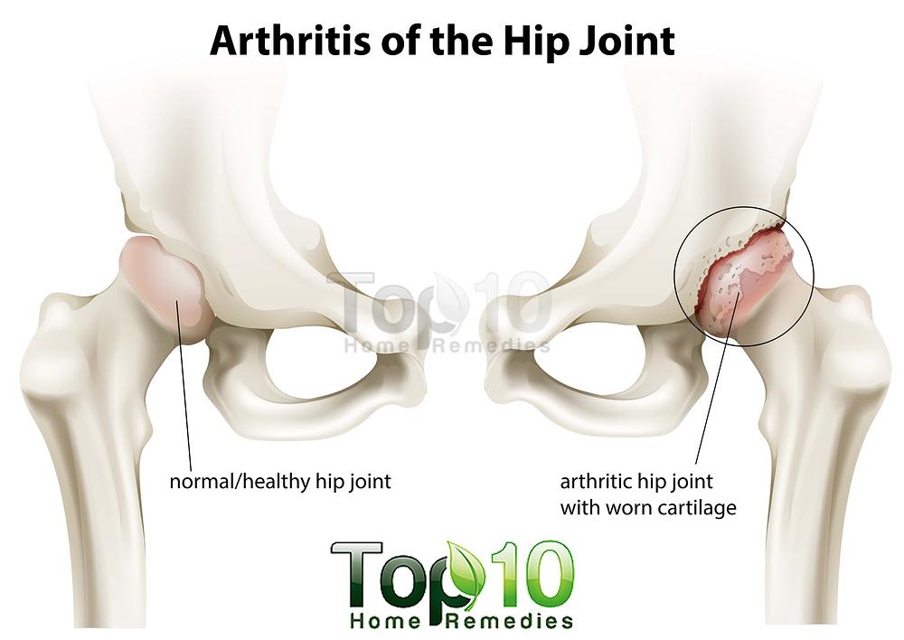Natural Remedies For Arthritis Hip Pain