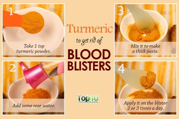 turmeric for blood blisters