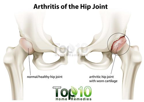 arthritis of the hip joint