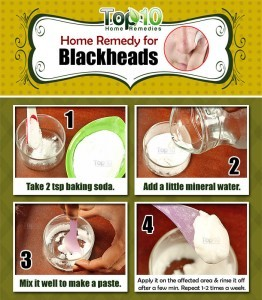 blackheads home remedy