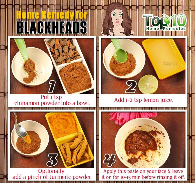 Home Remedies To Get Rid Of Blackheads Fast Top 10 Home Remedies