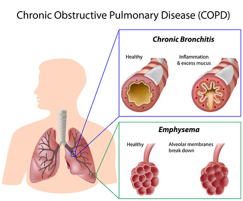 Natural Copd Cure