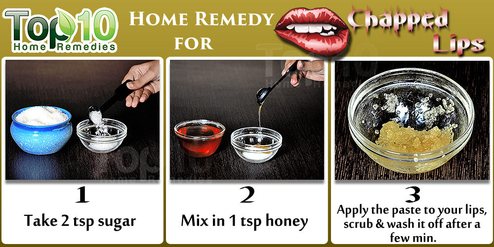 10 Natural Ways to Get Rid of Chapped Lips | Top 10 Home Remedies