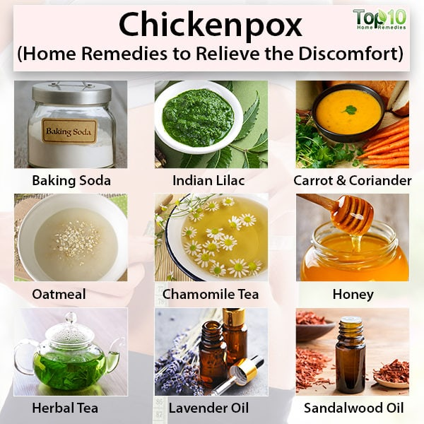 Chickenpox, home remedies to relieve discomfort