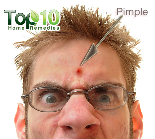 pimple on forehead