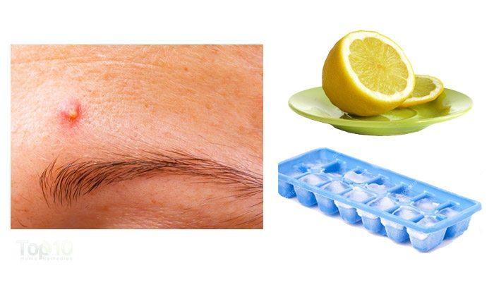 pimples cure