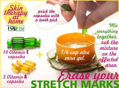 Stretch Marks home remedy