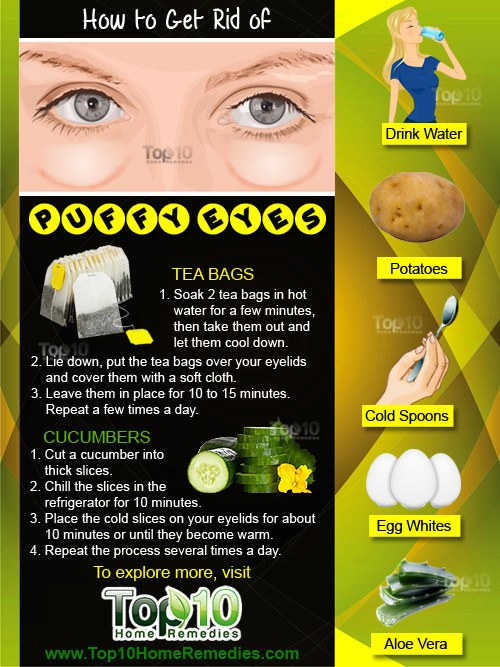 how-to-get-rid of puffy eyes