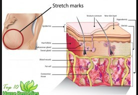 how to stop the spread of stretch marks