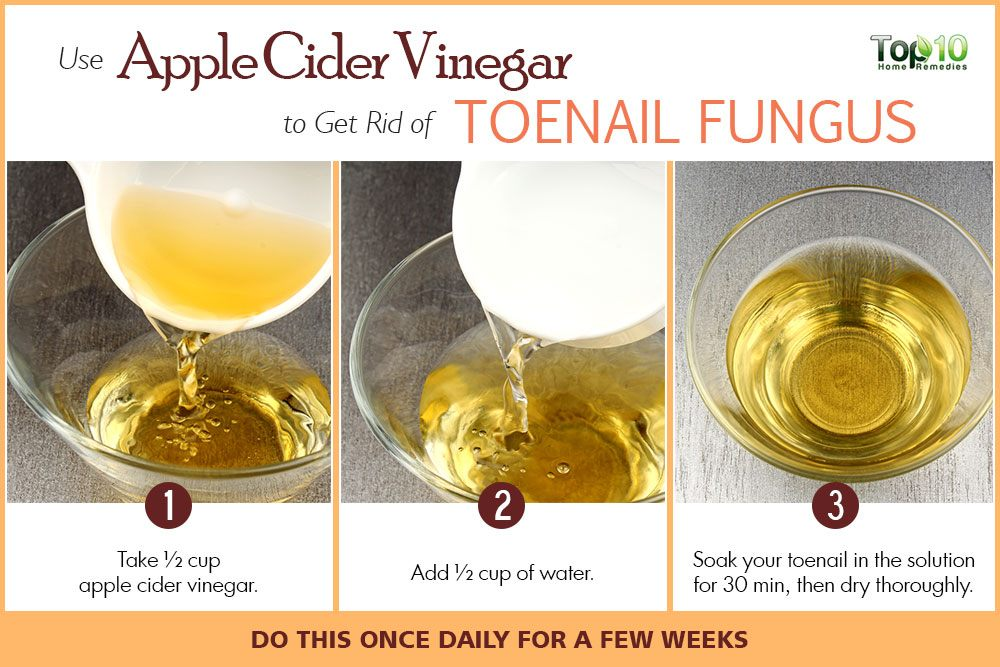 How to get rid of toenail fungus top 10 home remedies apple cider vinegar to treat toenail fungus sciox Gallery