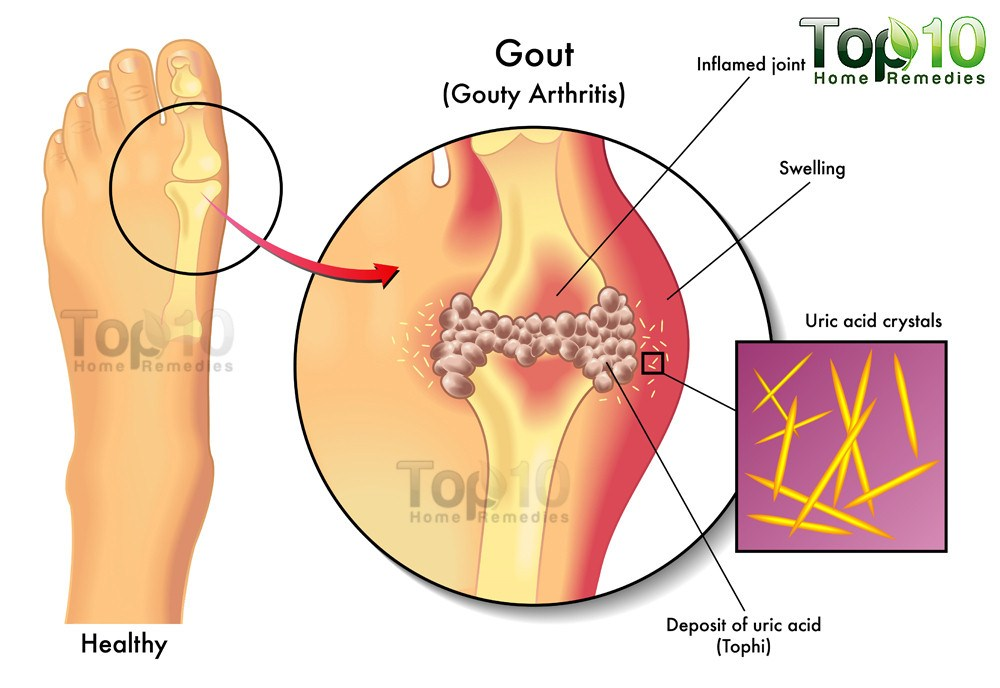 How To Treat Gout Symptoms Naturally