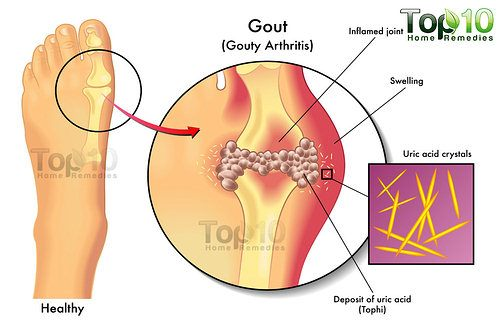 home remedies for gout top 10 home remedies. Black Bedroom Furniture Sets. Home Design Ideas