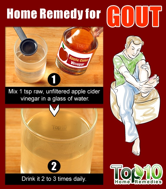 Home Remedies for Gout | Top 10 Home Remedies
