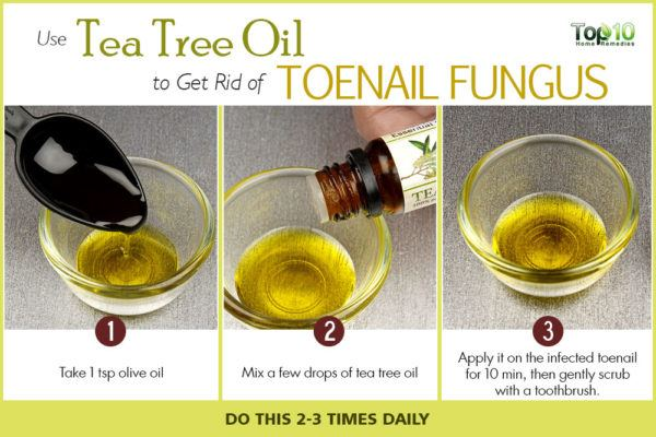 tea tree oil to get rid of toenail fungus