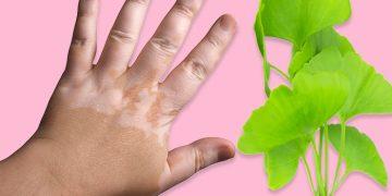 How to Get Rid of White Patches on Skin, Vitiligo