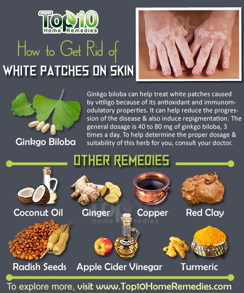 how to get rid of white-patches vitiligo