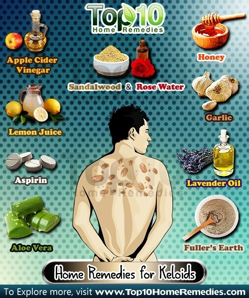 home remedies for keloids
