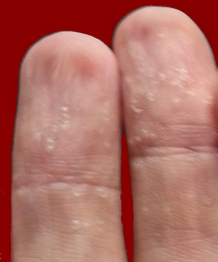 Peeling Skin On Hands & Fingertips - Yogawiz