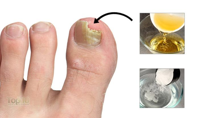 Natural Treatment For Finger Infection
