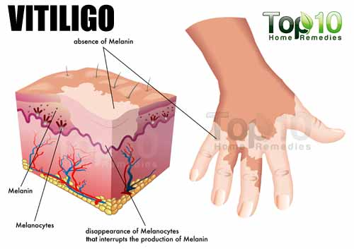 vitiligo illustration