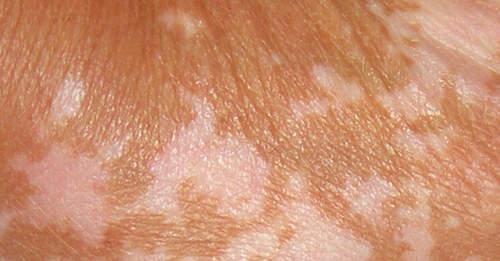 Liver Spots Treatment Natural