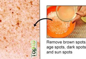 How To Get Rid Of Brown Spots On Skin