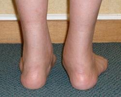 foot-tendonitis