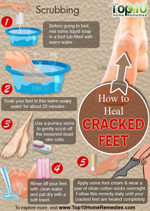 how to heal crack feet